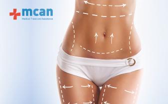 Tummy Tuck and Liposuction in Turkey | MCAN Health Blog