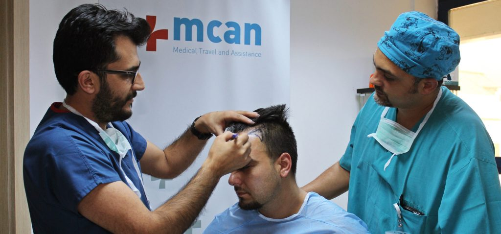 Hair Transplant Consultation in Turkey | MCAN Health