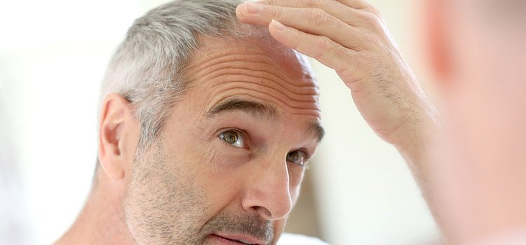 Are There Any Risks Of FUE Hair Transplantation? | MCAN Health Blog