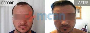 Antes y después del trasplante capilar en Turquía
