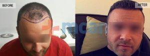 Antes y después del trasplante capilar – 6 meses después. 4.100 injertos