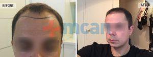 Antes y después del trasplante capilar – 9 meses después