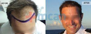 9 Monate nach der Haartransplantion