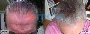 Antes y después del trasplante capilar – 1 año después