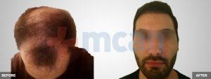 Antes y después del trasplante capilar   2.100 injertos
