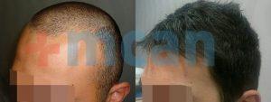 Vorher – nachher Haartransplantion | 2100 Grafts
