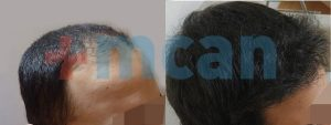 Antes y después del trasplante capilar   2.800 injertos