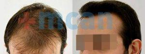 Antes y después del trasplante capilar   3.300 injertos