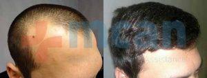 Antes y después del trasplante capilar   2.300 injertos