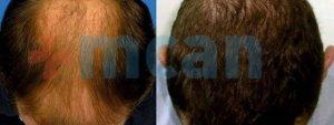 Antes y después del trasplante capilar   3.500 injertos