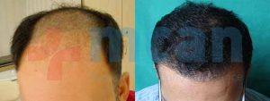Antes y después del trasplante capilar | 4.100 injertos