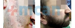 Antes y después trasplante de barba en Turquía
