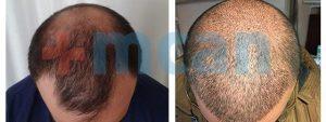 Antes y después trasplante capilar   3.500 injertos – 10º día