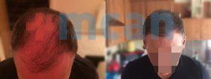 Antes y después del trasplante capilar – después de 6 meses. 3.500 injertos.