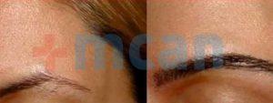 Vorher – nachher Augenbrauentransplantion