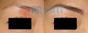 Antes y después del trasplante de cejas