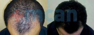 Vorher – nachher Haartransplantion in der Türkei