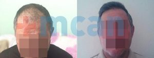 Before-After Hair Transplant In Turkey