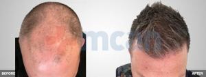 Haartransplant 3600 Grafts Nach dem 6 Monaten