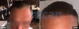 Hair Transplant with 2000 Grafts – 6 Months