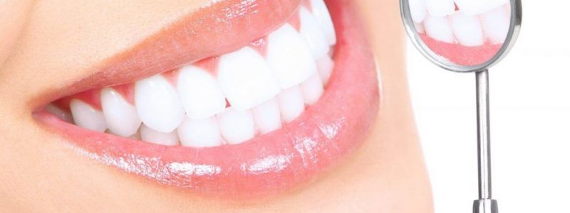 Dental Crowns (Tooth Crowns) in Turkey | MCAN Health