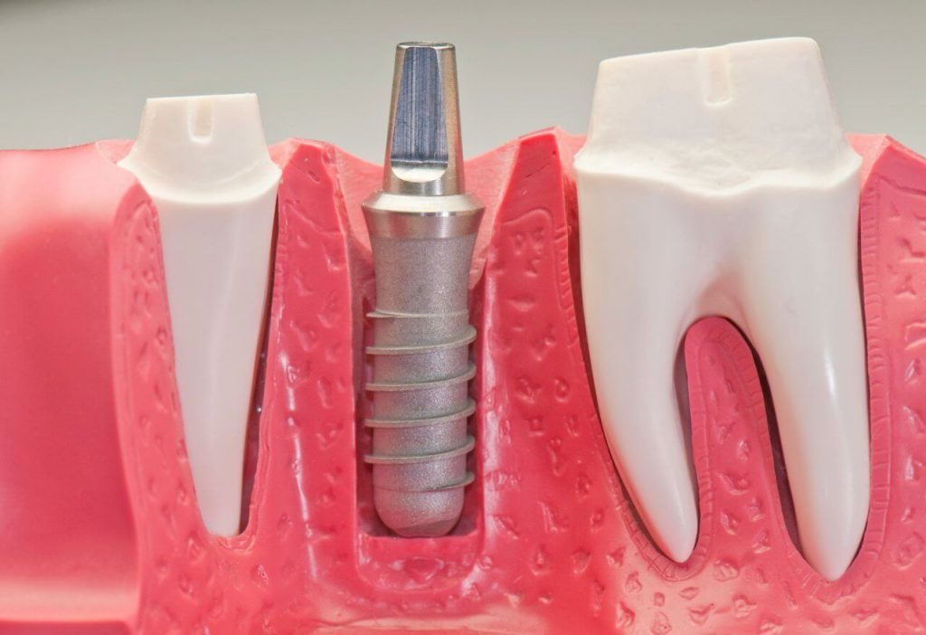 Dental Implants (Tooth Implant) Turkey   MCAN Health