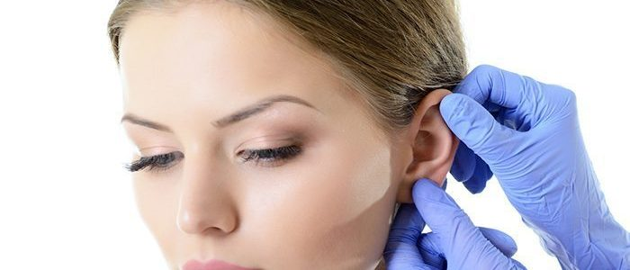 Ear Reshaping Turkey | MCAN Health