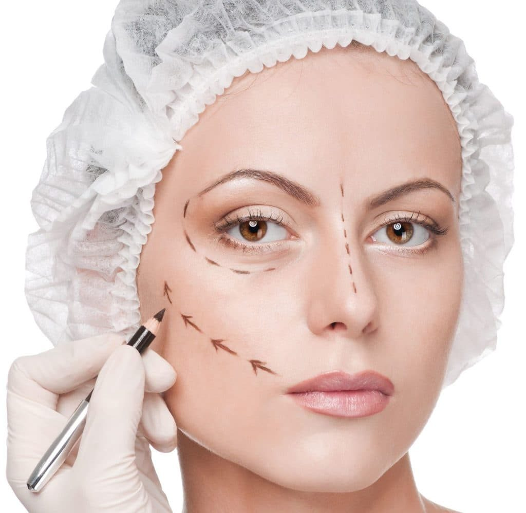 Facelift (Rhytidectomy) Turkey   MCAN Health