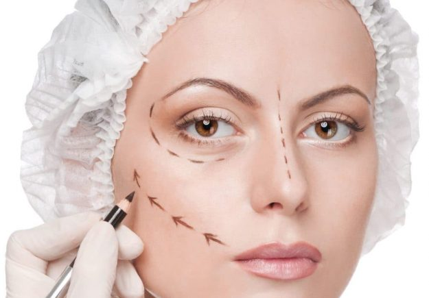 Facelift (Rhytidectomy) Turkey | MCAN Health