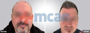 hair-transplant-with-3600-grafts-6-months