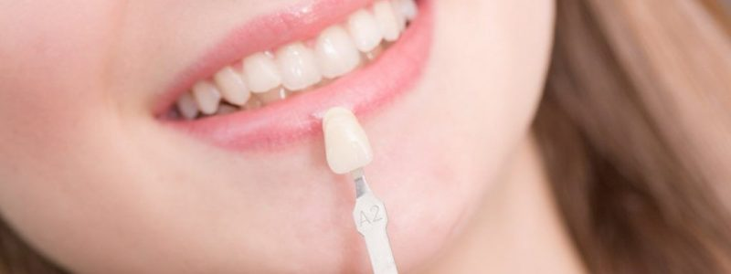Porcelain Veneers Turkey | MCAN Health