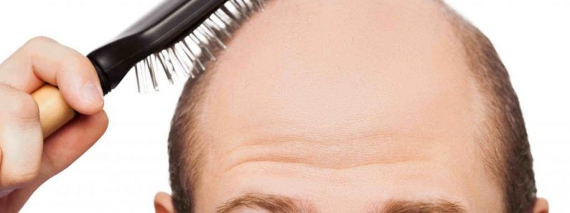 PRP Treatment for Hair Loss in Istanbul | MCAN Health