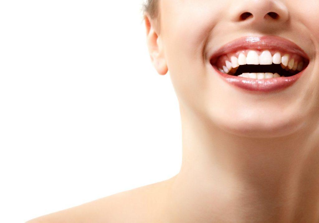 Mcan Health Teeth Bleaching
