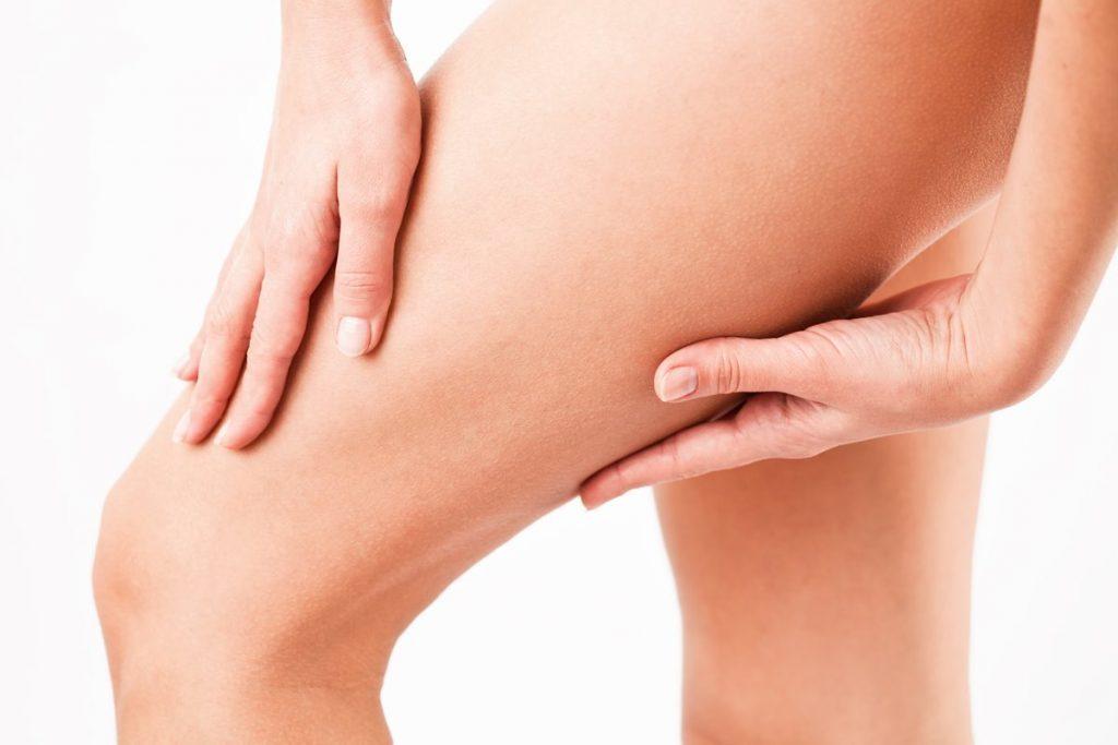 thigh-lift in Turkey   MCAN Health