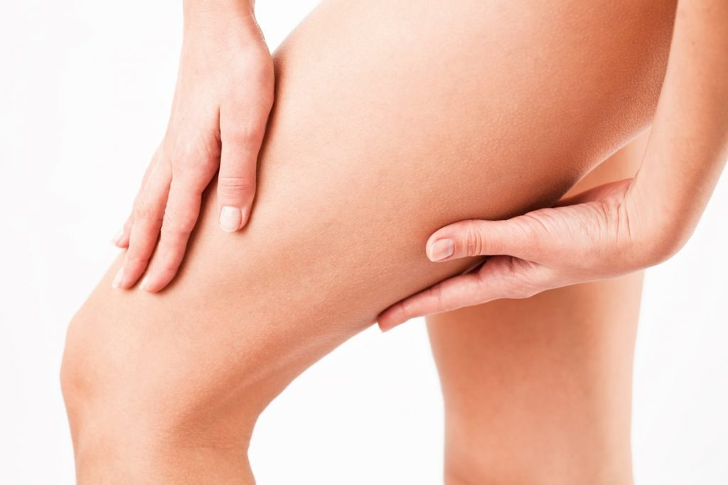 thigh-lift in Turkey | MCAN Health