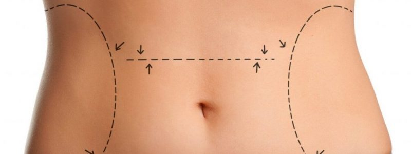 Tummy Tuck In Turkey | MCAN Health
