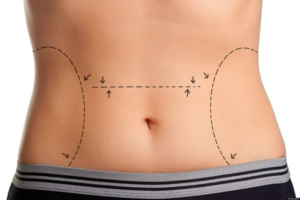Tummy Tuck Turkey | Affordable Abdominoplasty in Istanbul | MCAN Health