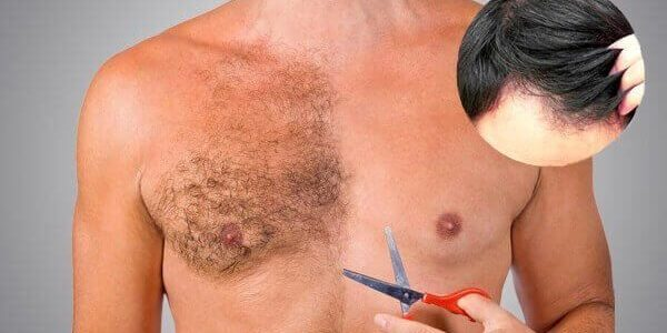 Body Hair Transplant | MCAN Health Blog