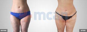 Antes y después de la liposucción