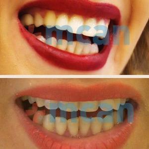 Antes y después de las coronas dentales