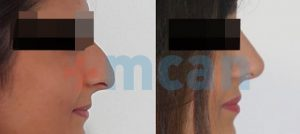 Before-After Affordable Rhinoplasty In Turkey | Nose Job in Turkey | MCAN Health Before-After