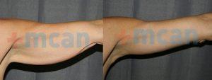Antes y después del lifting de brazos