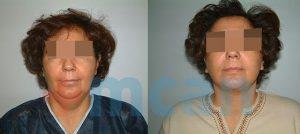Antes y después del lifting de cuello en Turquía