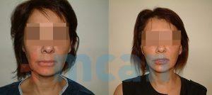 Antes y después del mini lifting facial
