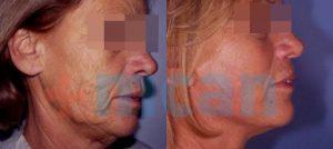 Antes y después del lifting facial