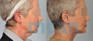 Antes y después del lifting de cuello
