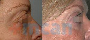 Antes y después de la ciurgía de párpados
