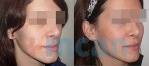 Antes y después del aumento de pómulos con grasa