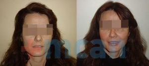 Wangenvergrößerung mit Fettinjektion