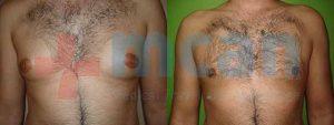 Antes y después de la ginecomastia